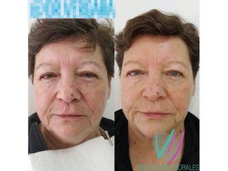 Rejuvenecimiento facial - 646263