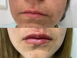 Aumento de labios - 636512