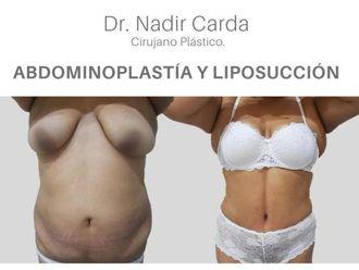 Abdominoplastia-642965
