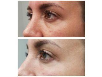Tratamiento de ojeras - 642970