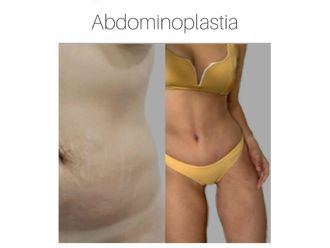 Abdominoplastia - 642972