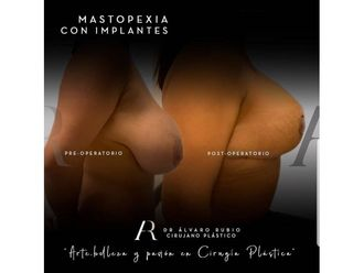Mastopexia - 650542