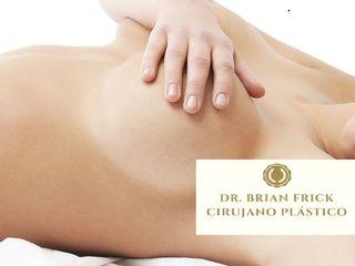 Aumento mamario o mamoplastia de aumento Dr. Brian