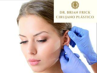 Otoplastia Dr. Brian Frick