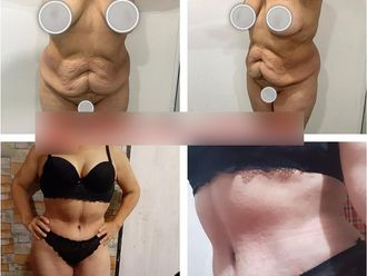 Abdominoplastia-738114
