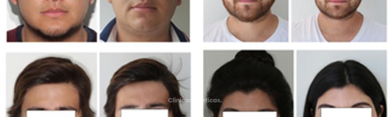 Pacientes con Bichectomía