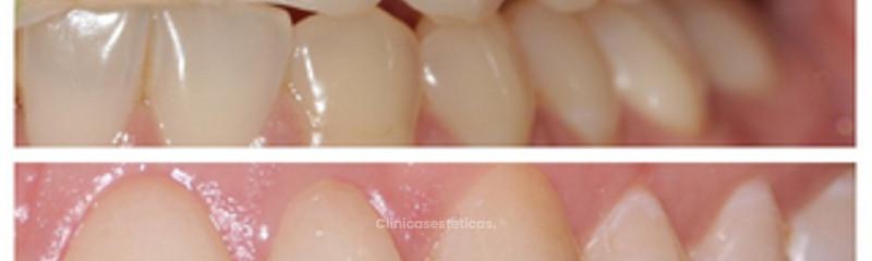 Clínica Dental y Alta Estética Nirre