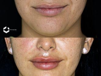 Aumento de labios - 643586