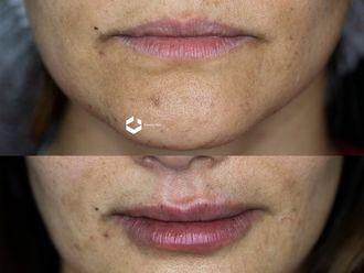 Aumento de labios - 643587