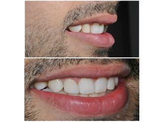 Blanquear dientes-498302