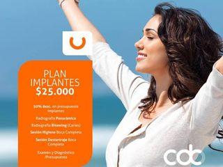Plan de Implantes $25.000.jpg