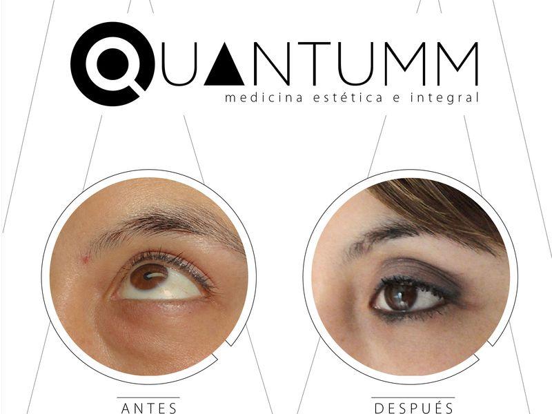 Clinica Quantumm