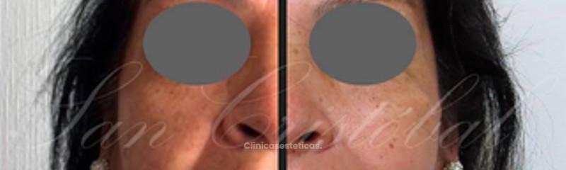 FULL FACE antes y después