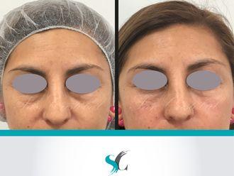 Rejuvenecimiento facial - 641222