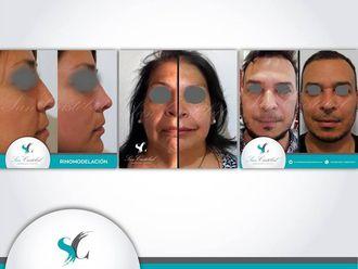 Rejuvenecimiento facial - 641232