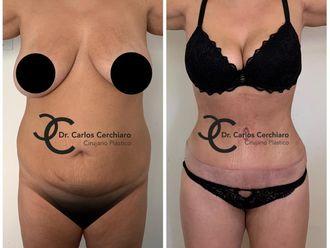Abdominoplastia - 642309