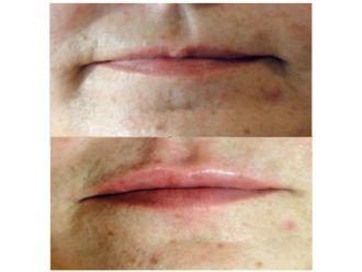 Aumento de labios-501526