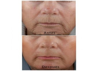 Rejuvenecimiento facial-501528