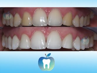 Blanquear dientes - 633221