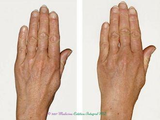 Manchas de la piel - 608154