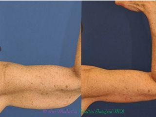 Hilos Tensores - Brazos flácidos - Alta tracción y tratamiento combinado - Resultados evidentes