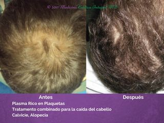 Calvicie - Alopecia - Caida del cabello