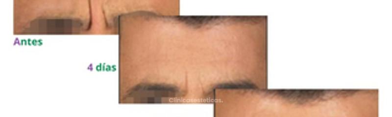 Botox - Entrecejo y Frente - También para hombres que desean pulir su imagen