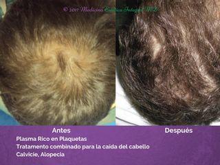Calvicie - Alopecía