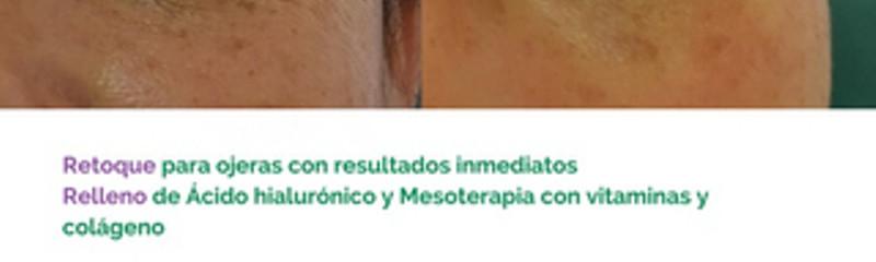 Ojeras y Bolsas - Tratamiento combinado