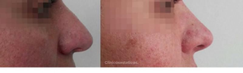 Rinomodelación - Cambios inmediatos - Sin cirugías