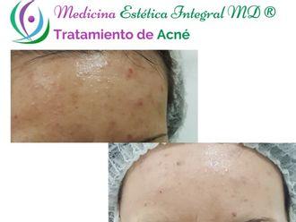 Tratamiento acné - 621249