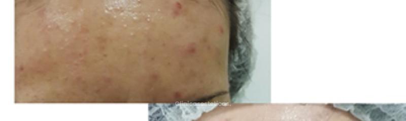 Acné - Tratamiento Integral de Marcas y Cicatrices
