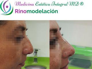 Rinomodelación - Sin cirugías - Ácido Hialurónico, Ellansé o Hilos Tensores