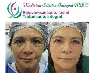 Rejuvenecimiento facial - 622955