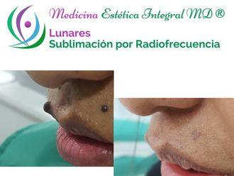 Lunares-624086