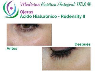 Ojeras - Ácido Hialurónico (Rendesity II)