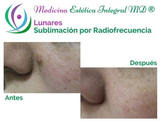 Lunares - 624664