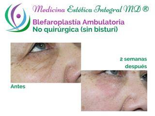 Blefaroplastía Ambulatoria - Sin Bisturí