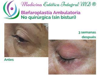 Blefaroplastia-624667