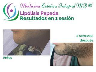 Lipólisis de Papada - Sin Cirugía