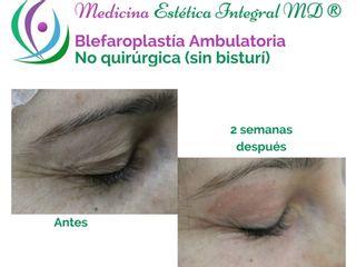 Blefaroplastía sin Cirugía - Corrección de párpados caídos