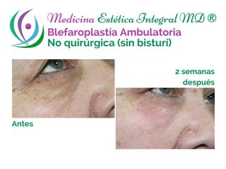Blefaroplastía sin Cirugía - Párpados Inferiores