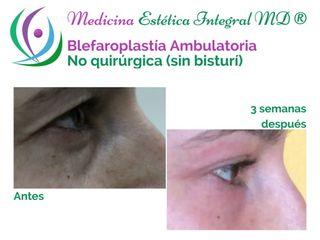 Blefaroplastía sin Cirugía - Bolsas bajo los ojos