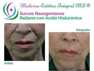 Ácido hialurónico en surcos nasogenianos