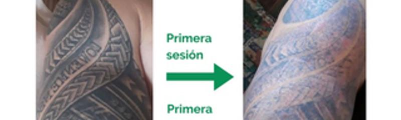 Borrado de Tatuajes - Mayor rapidez y precisión