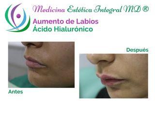 Aumento de Labios con Ácido Hialurónico