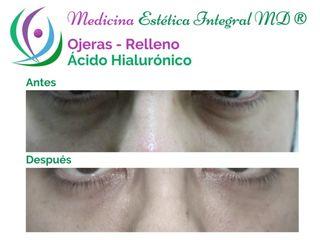 Ojeras con ácido hialurónico - Redensity II