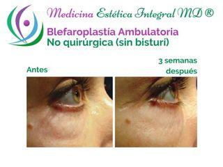Blefaroplastía no invasiva - Tratamiento combinado