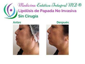 Rejuvenecimiento facial - 626892