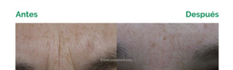 Entrecejo - Botox y Ácido Hialurónico
